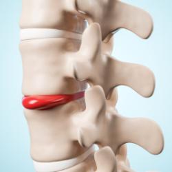 PLDD(経皮的レーザー椎間板減圧術)