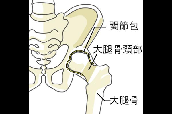大腿骨頸部骨折について