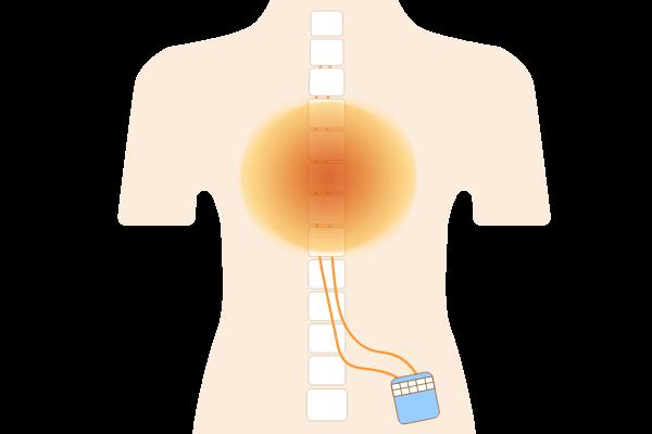 脊髄刺激療法(SCS)とは